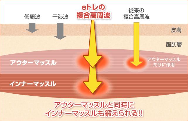 宝塚市阪急逆瀬川駅おはな整骨院のeトレの効果イメージ